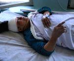 AFGHANISTAN FARAH BOMB BLAST