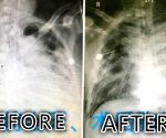 How corona-recovered patients can improve lung function