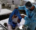 Andhra announces Rs 25L ex-gratia for doctors falling prey to Covid