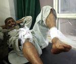 10 injured in grenade attack in J&K's Pulwama