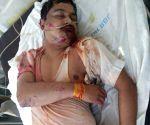 Unnao rape survivor's lawyer at Lucknow Trauma Centre