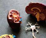 Kidney stones linked to bone problems: Study