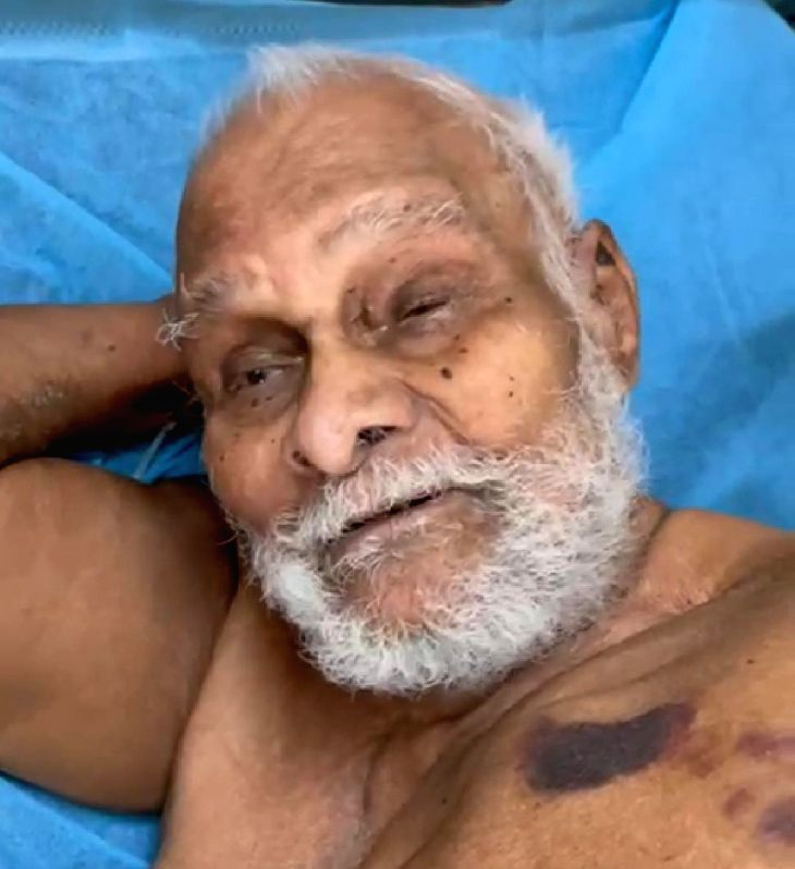 110-year-old recovers from Covid in Hyderabad