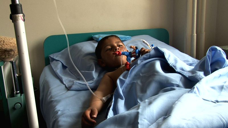 An Afghan wounded child receives treatment following a suicide bombing in Kabul, Afghanistan on Nov. 24, 2014. The bloody suicide bombing in Afghan ...