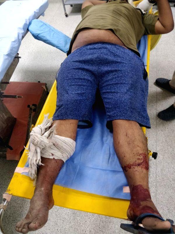 3 criminals injured in 2 encounters in Delhi