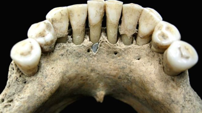 A lapis lazuli fragment trapped in the lower jaw of the medieval woman