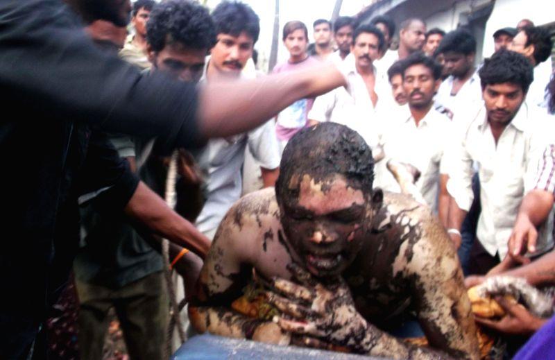 (A mobile camera photo) A victim of a blast in a gas pipeline belonging to GAIL in Andhra Pradesh's East Godavari district on June 27, 2014.