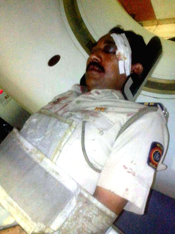 A police constable of Kalwa police station admitted to hospital after being attacked by robbers in Mumbai on May 13, 2014. Two police constables of the same police station were attacked.