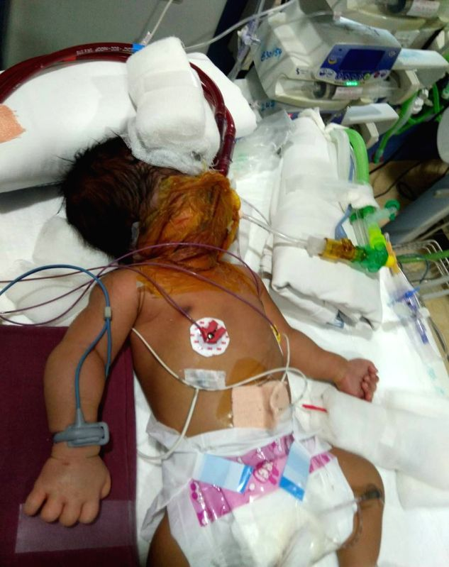 A two-month-old baby diagnosed with meconium aspiration syndrome (MAS) being successfully saved after extracorporeal membrane oxygenation (ECMO) procedure by a team of doctors of KIMS ...