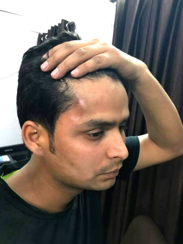 Abhinav Mishra, Delhi BJP chief Manoj Tiwari's personal staff who was thrashed in an attack on Tiwari's house; in New Delhi on April 1, 2017. The incident occurred around 1.15 a.m. ... - Abhinav Mishra