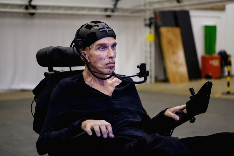 British roboticist Dr. Peter Scott-Morgan, who has motor neurone disease, began in 2019 to undergo a series of operations to extend his life using technology. (Photo credit: Cardiff Productions)