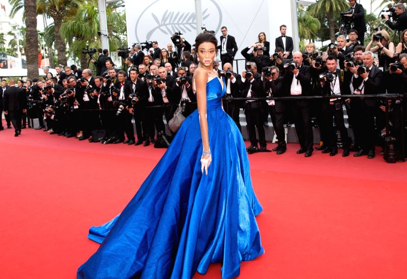 "CANNES, May 18, 2017 - Canadian model Winnie Harlow poses on the red carpet for the screening of the film ""Loveless"" in competition at the 70th Cannes International Film Festival in Cannes, ... - Winnie Harlow"