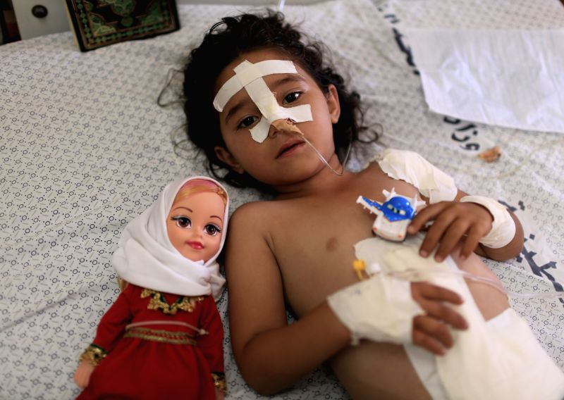 Shayma al-Masri, a four-year-old Palestinian girl is treated at a hospital in Gaza, July 14, 2014. The Israeli airstrikes has caused 172 Palestinians dead and 1230 ...