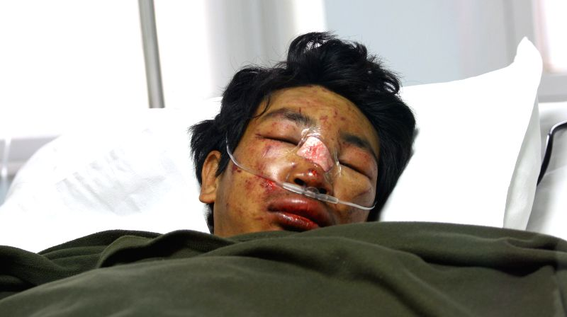 An injured climber from the avalanche, is seen under treatment at Grandi International Hospital in Kathmandu, Nepal, April 18, 2014. An avalanche hit Khubuche ...