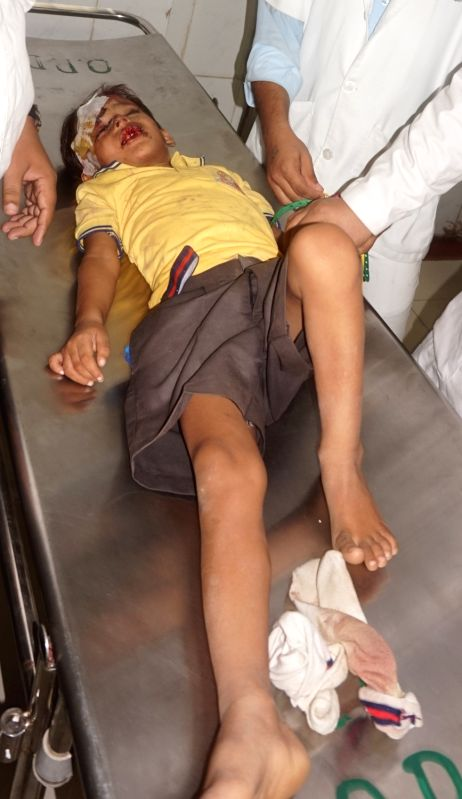 One of the injured children being treated at Deendayal Upadhyay District Hospital in Varanasi on July 15, 2016. At least 10 children were killed in Uttar Pradesh's Bhadohi district as their ...