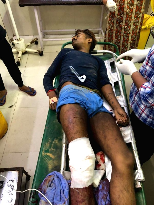 One of the miscreants who was shot by Delhi Police Special cell being treated at a Delhi Hospital.