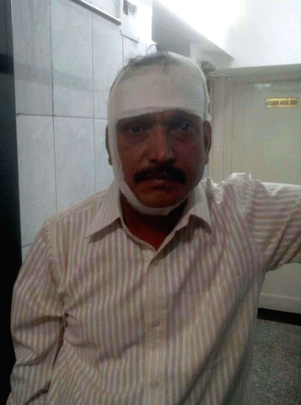 One of the two police constables of Kalwa police station who was attacked by robbers, at Prakruti hospital in Mumbai on May 13, 2014. Two police constables of the same police station were attacked.