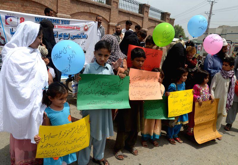 Pakistani children suffering from thalassemia attend a rally to mark the International Thalassemia Day in northwest Pakistan's Peshawar, on May 8, 2015. Thalassemia ...