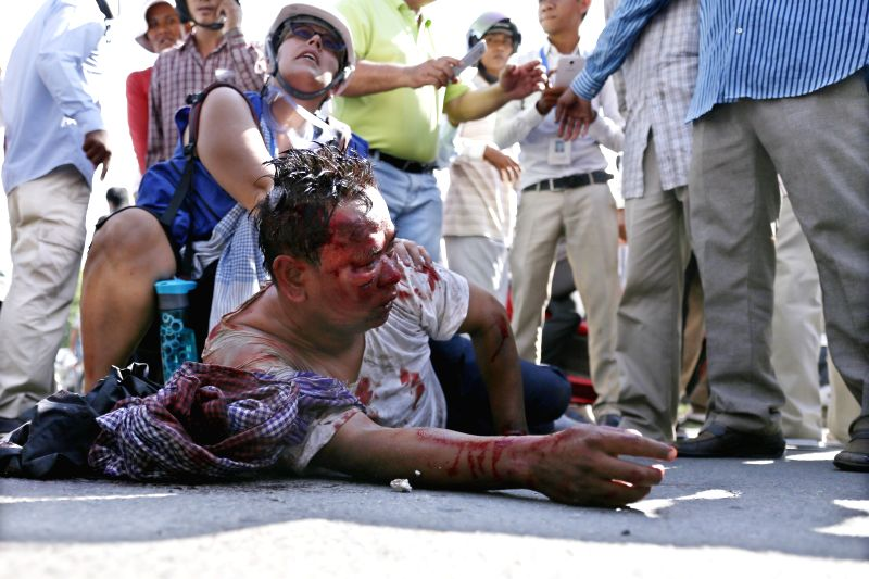 A security guard is seriously beaten during a clash near the Freedom Park in Phnom Penh, Cambodia, July 15, 2014. Cambodian authorities have detained three ...
