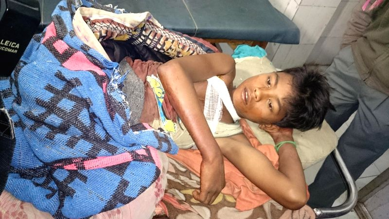 A victim of police firing being treated at an hospital in Dhekiajuli under Sonitpur district of Assam on Dec 24, 2014.