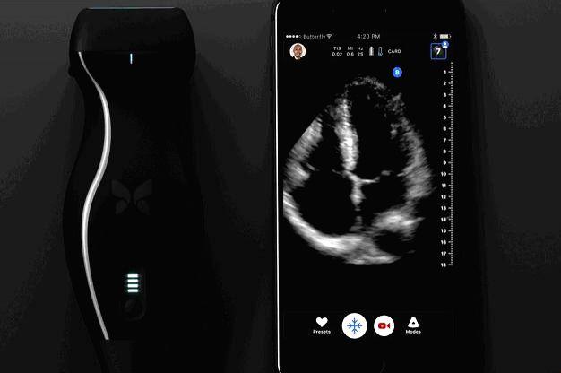 iphone ultrasound machine
