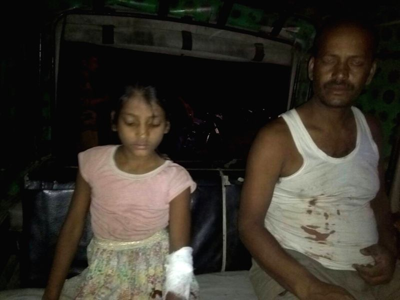 Yogendra Pratap Singh and his minor daughter who were injured after suspected militants hurled a grenade at their residence in Tinsukia district of Assam on May 4, 2017. - Yogendra Pratap Singh
