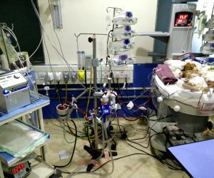 Neonatal ECMO performed at Hyderabad's KIMS Hospitals
