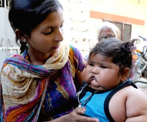 8-month-old weighs 20kg