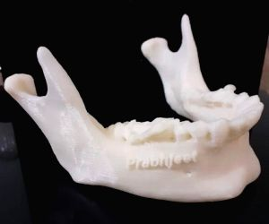 3D-printed jaw helps Indian oral cancer survivor eat everything