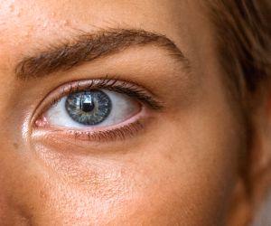 Avoid skin allergies caused by masks