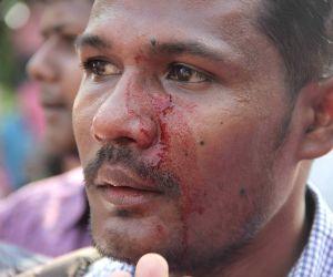 Lathi-charge on SFI activists