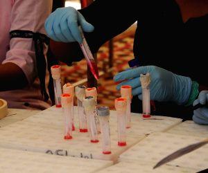 Bharatpur woman baffles doctors testing Covid positive 31 times