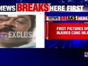 Congress resort brawl: First pictures of injured MLA out