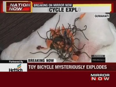 Assam: Toy bicycle mysteriously exploded in Guwahati